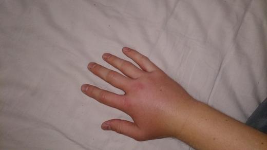 2013-06-23 bienenstich-hand